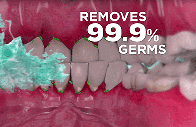 Remove 99.9% Germs